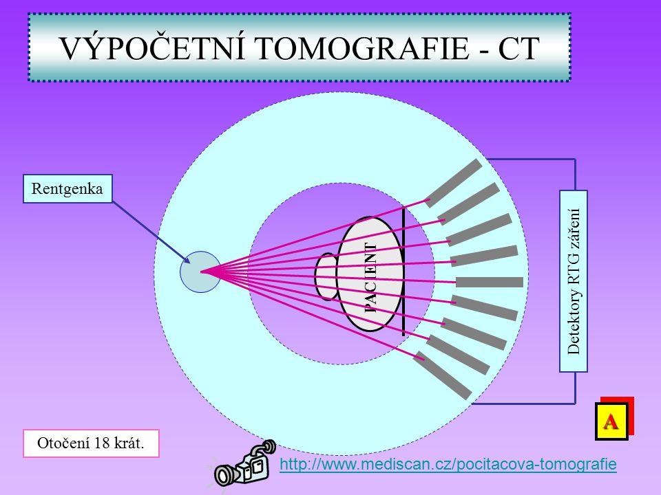 VÝPOČETNÍ TOMOGRAFIE - CT