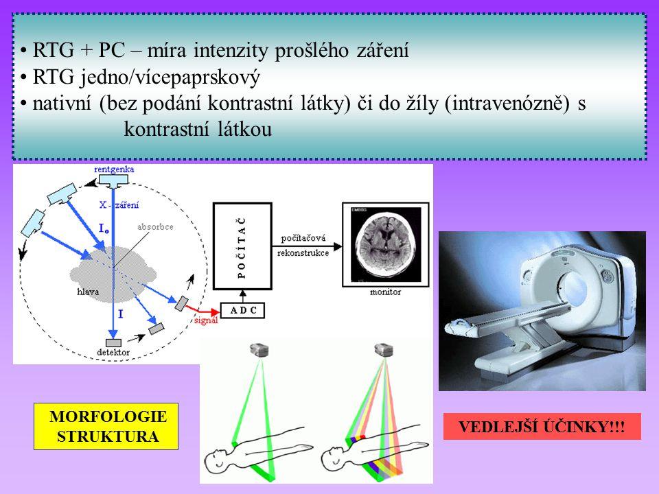 RTG + PC – míra intenzity prošlého záření RTG jedno/vícepaprskový