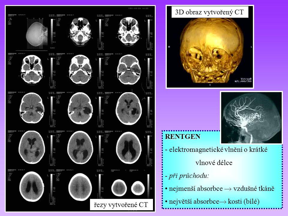 3D obraz vytvořený CT RENTGEN. - elektromagnetické vlnění o krátké. vlnové délce. - při průchodu: