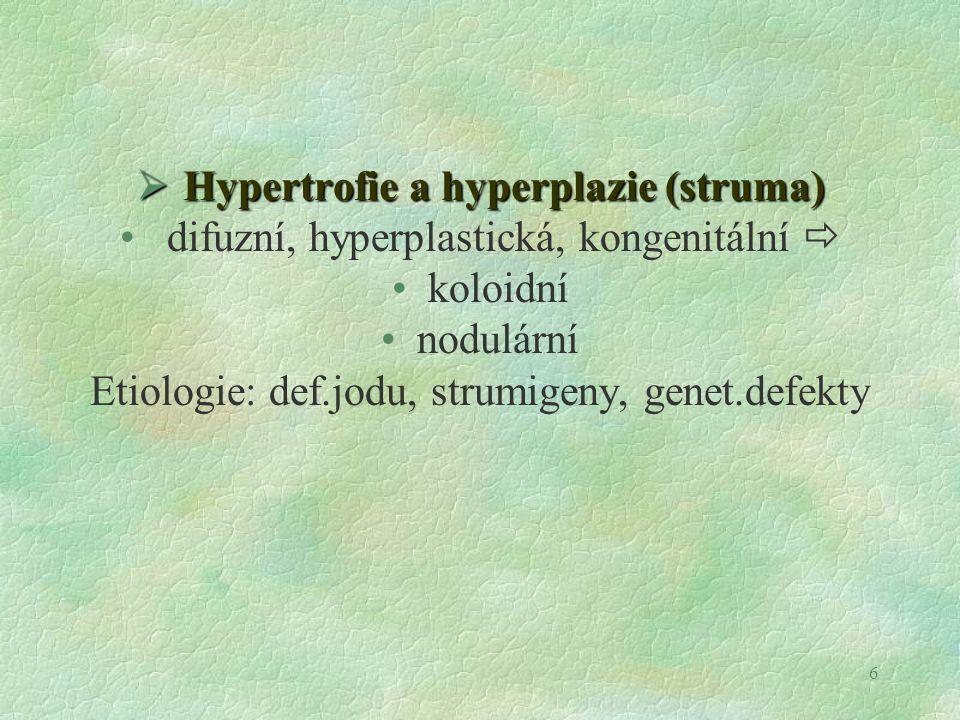 Hypertrofie a hyperplazie (struma)