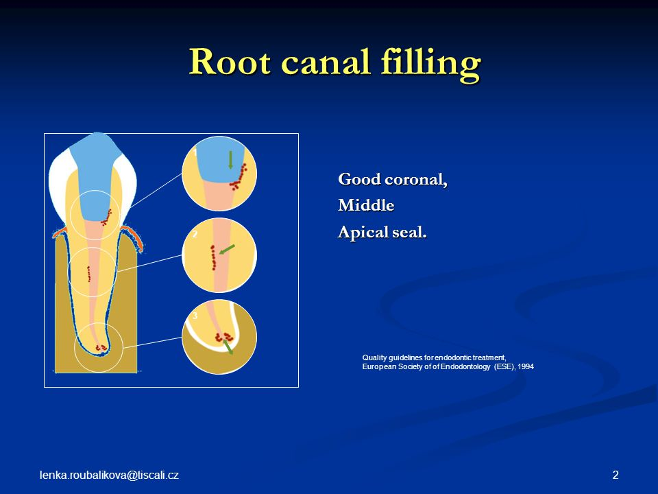 Root canal filling Good coronal, Middle Apical seal.