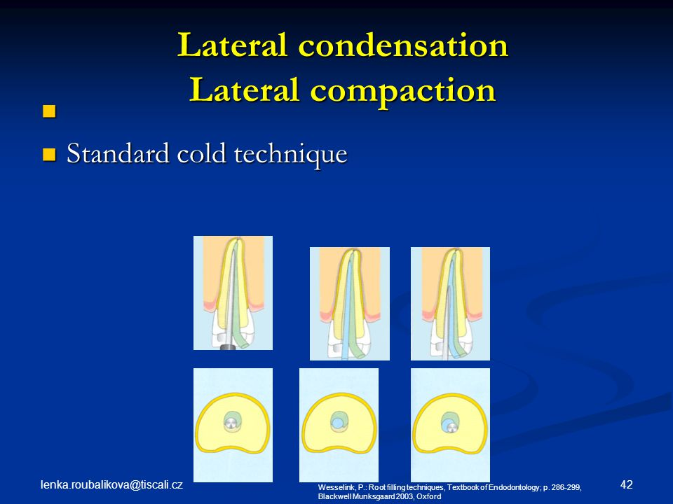 Lateral condensation Lateral compaction