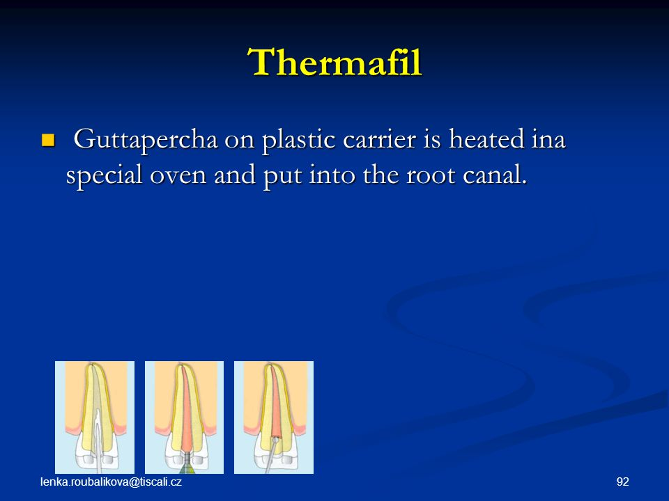 Thermafil Guttapercha on plastic carrier is heated ina special oven and put into the root canal.