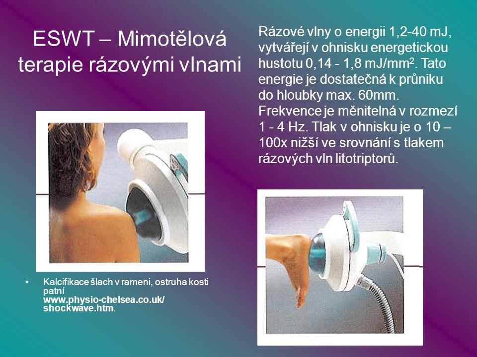 ESWT – Mimotělová terapie rázovými vlnami