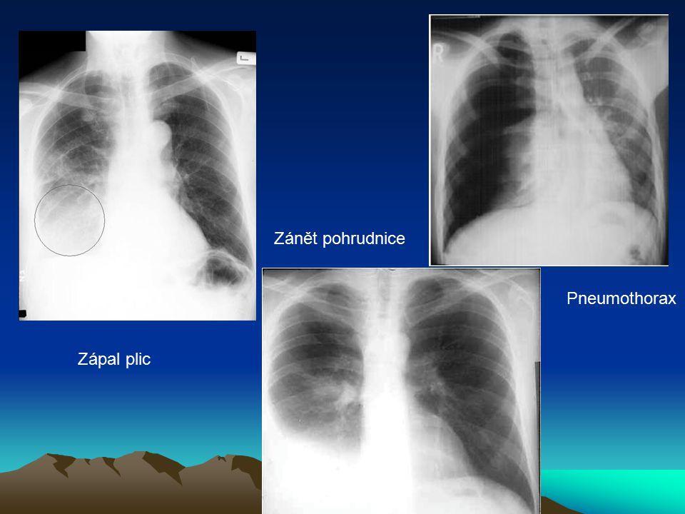 Zánět pohrudnice Pneumothorax Zápal plic