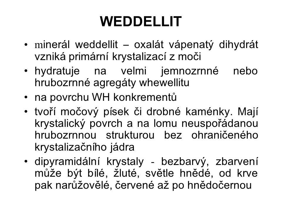 WEDDELLIT minerál weddellit – oxalát vápenatý dihydrát vzniká primární krystalizací z moči.
