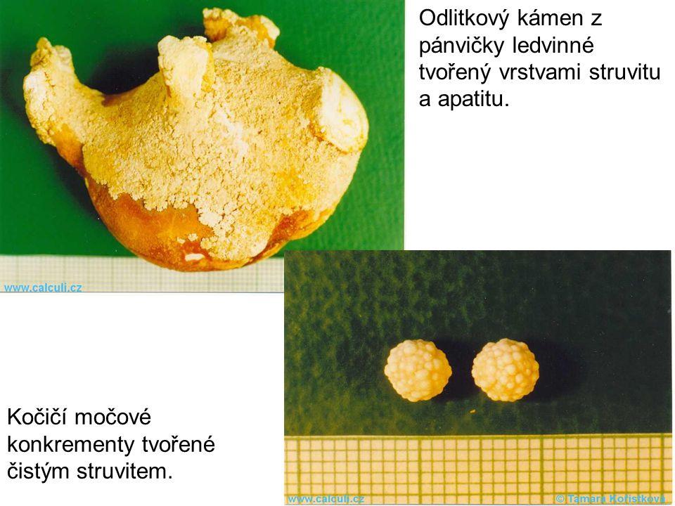 Odlitkový kámen z pánvičky ledvinné tvořený vrstvami struvitu a apatitu.