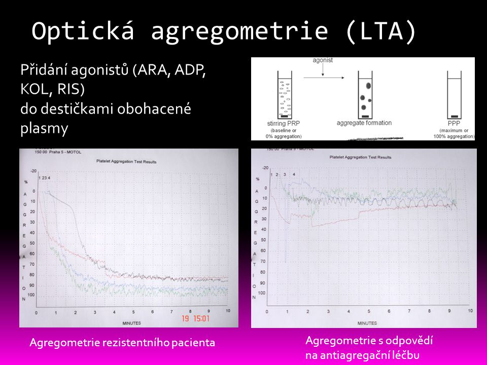 Optická agregometrie (LTA)