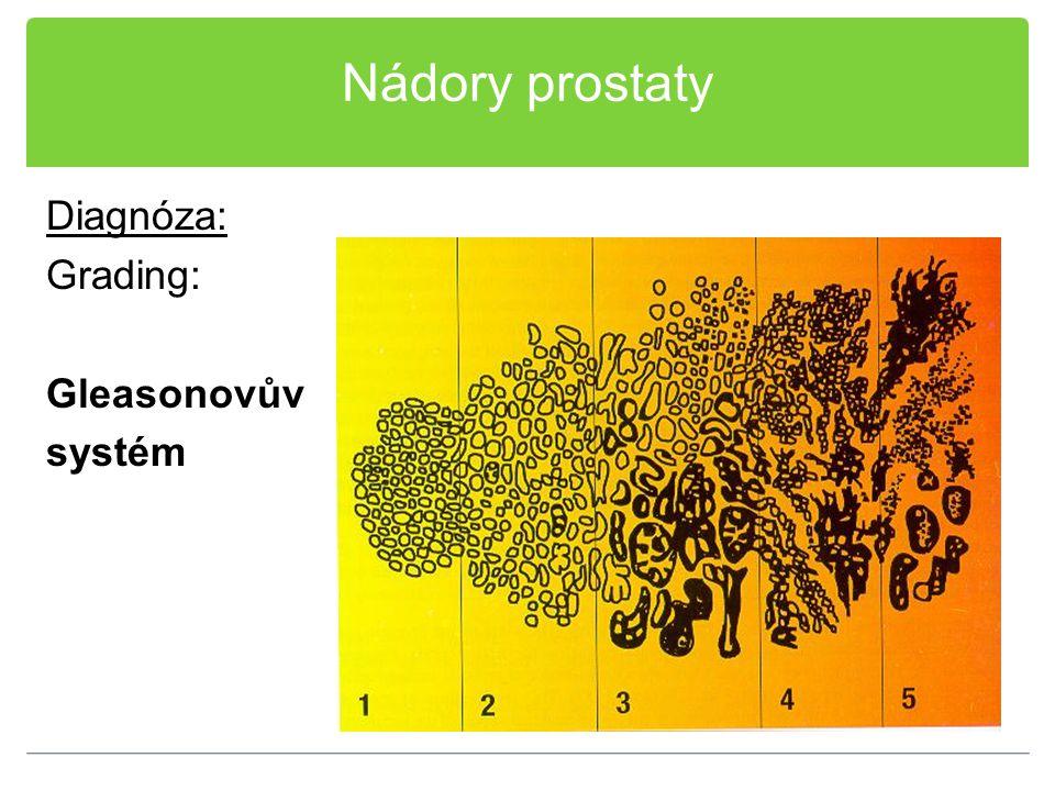 Nádory prostaty Diagnóza: Grading: Gleasonovův systém