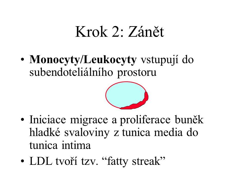 Krok 2: Zánět Monocyty/Leukocyty vstupují do subendoteliálního prostoru.