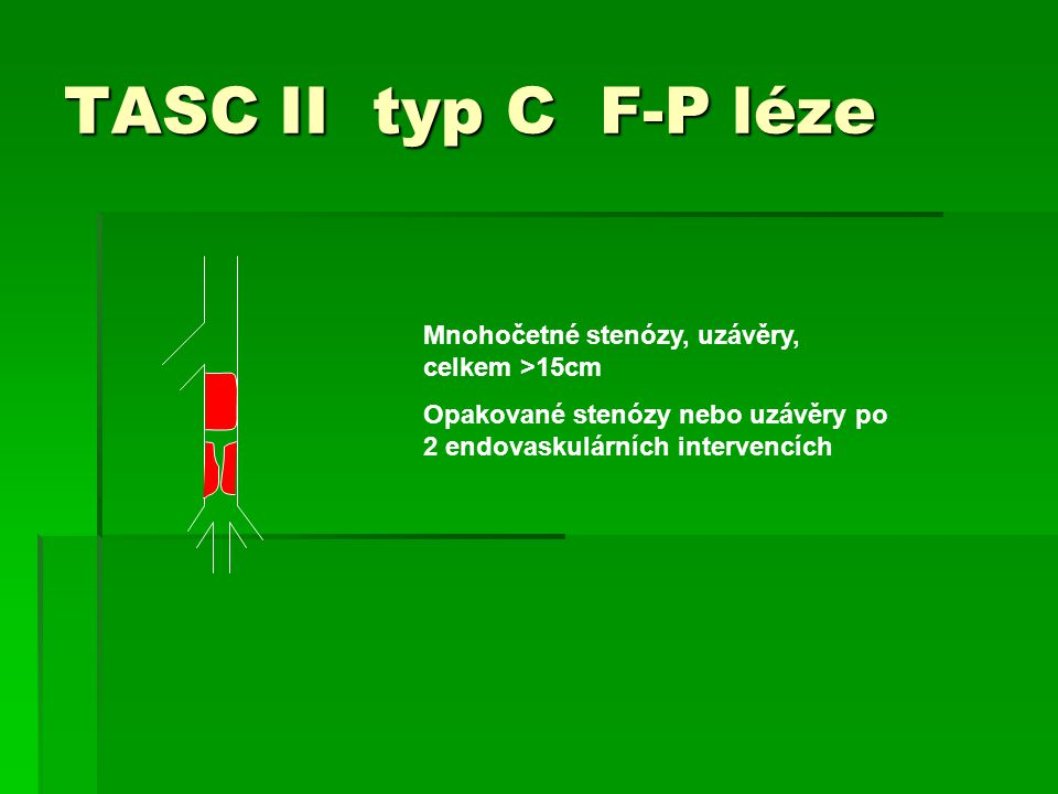 TASC II typ C F-P léze Mnohočetné stenózy, uzávěry, celkem >15cm