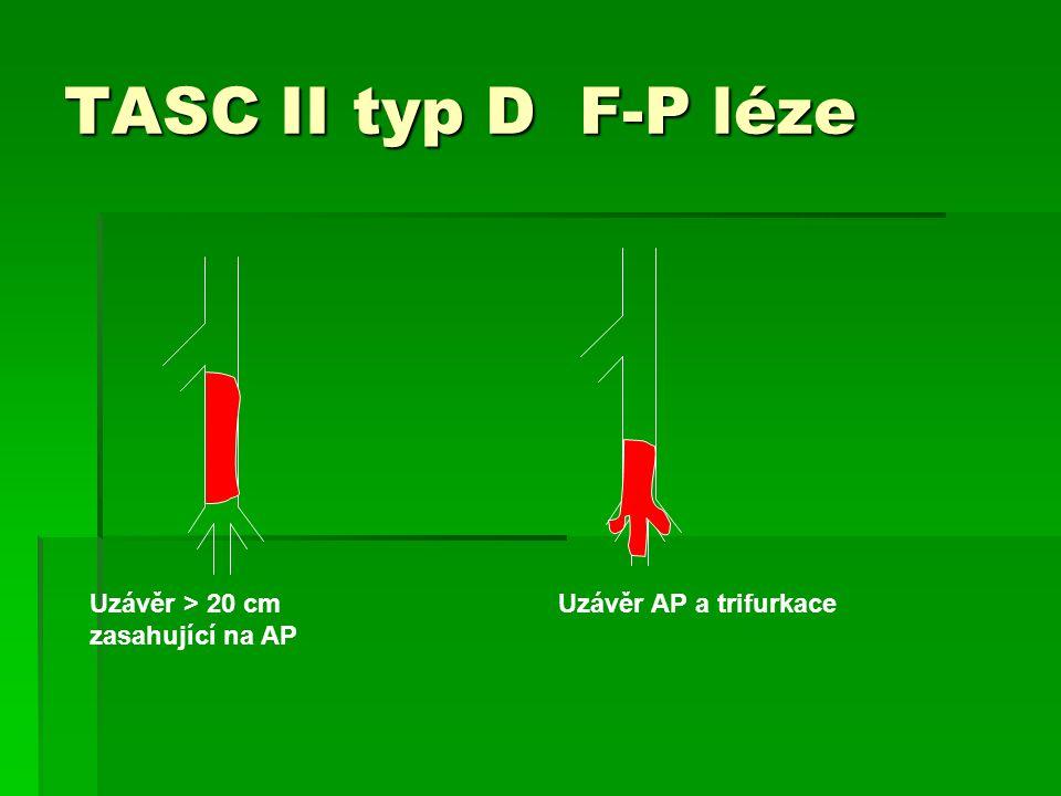 TASC II typ D F-P léze Uzávěr > 20 cm zasahující na AP