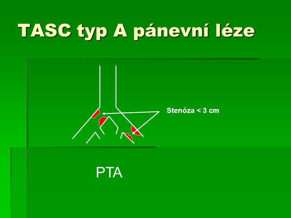 TASC typ A pánevní léze Stenóza < 3 cm PTA