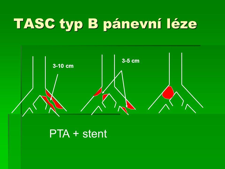 TASC typ B pánevní léze 3-5 cm 3-10 cm PTA + stent