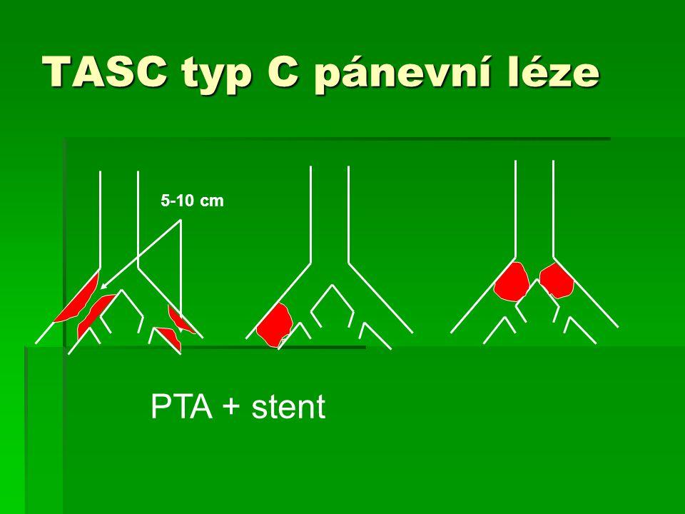 TASC typ C pánevní léze 5-10 cm PTA + stent