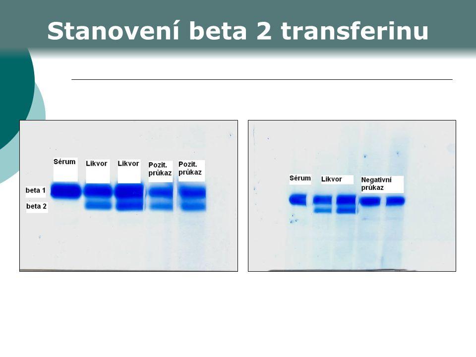 Stanovení beta 2 transferinu
