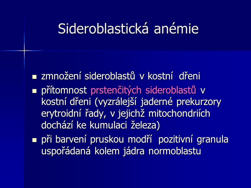 Sideroblastická anémie