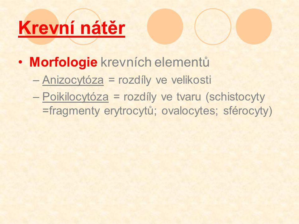 Krevní nátěr Morfologie krevních elementů