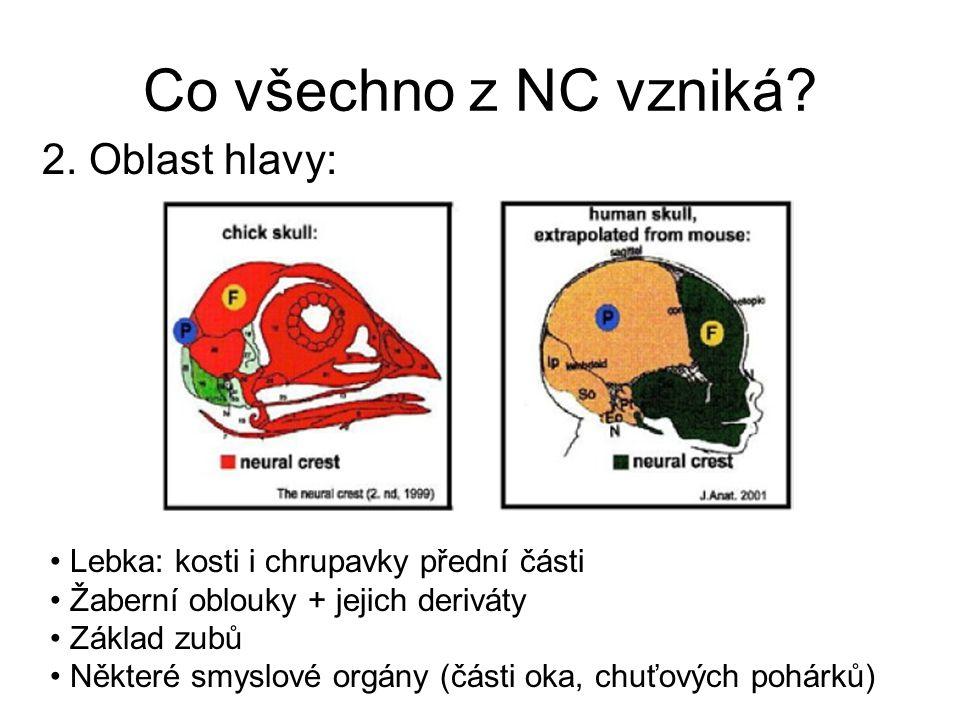 Co všechno z NC vzniká 2. Oblast hlavy: