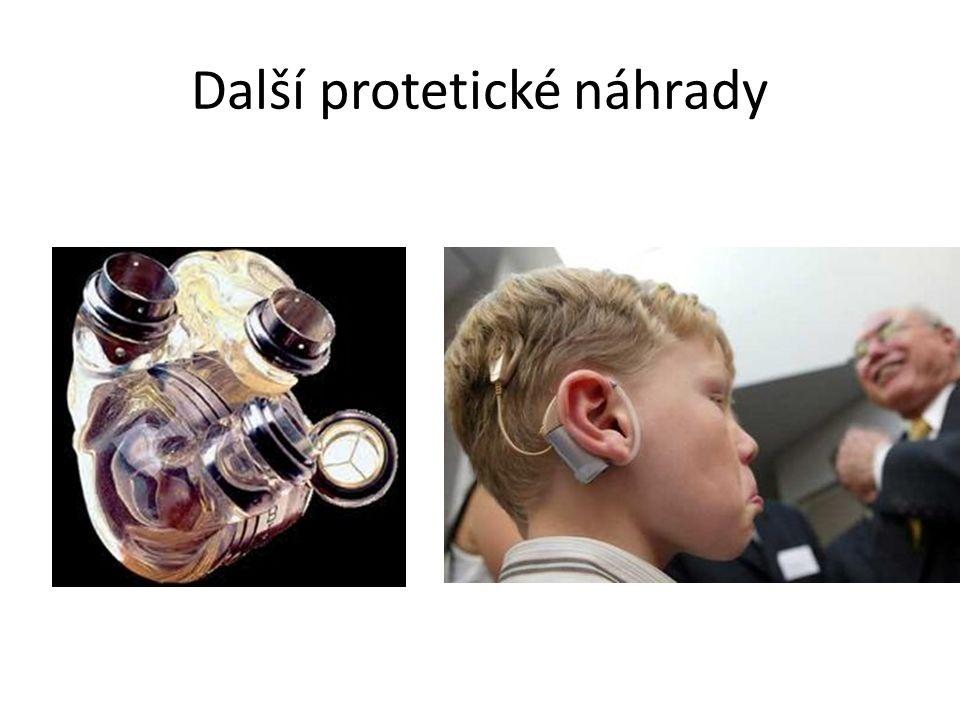 Další protetické náhrady