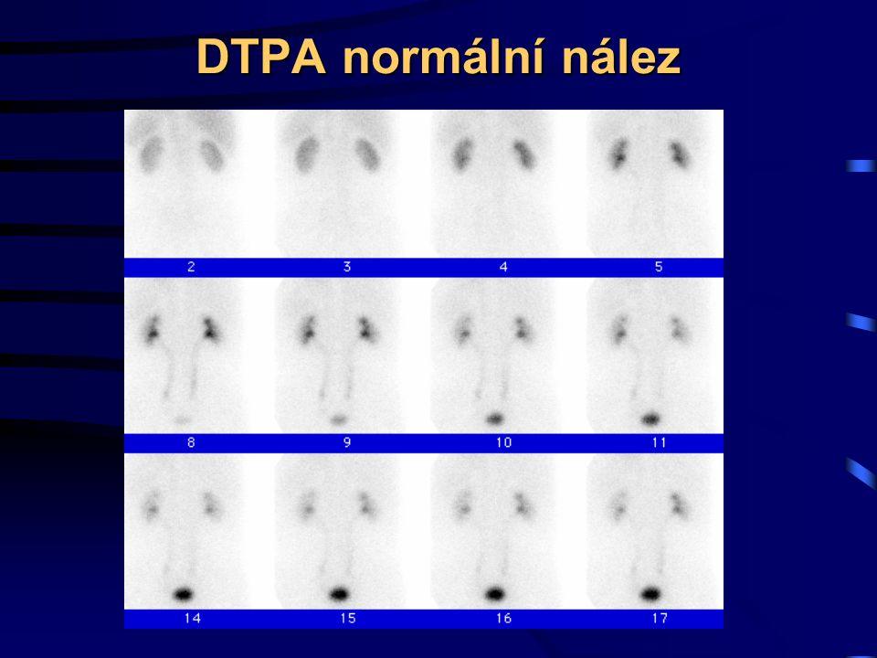 DTPA normální nález