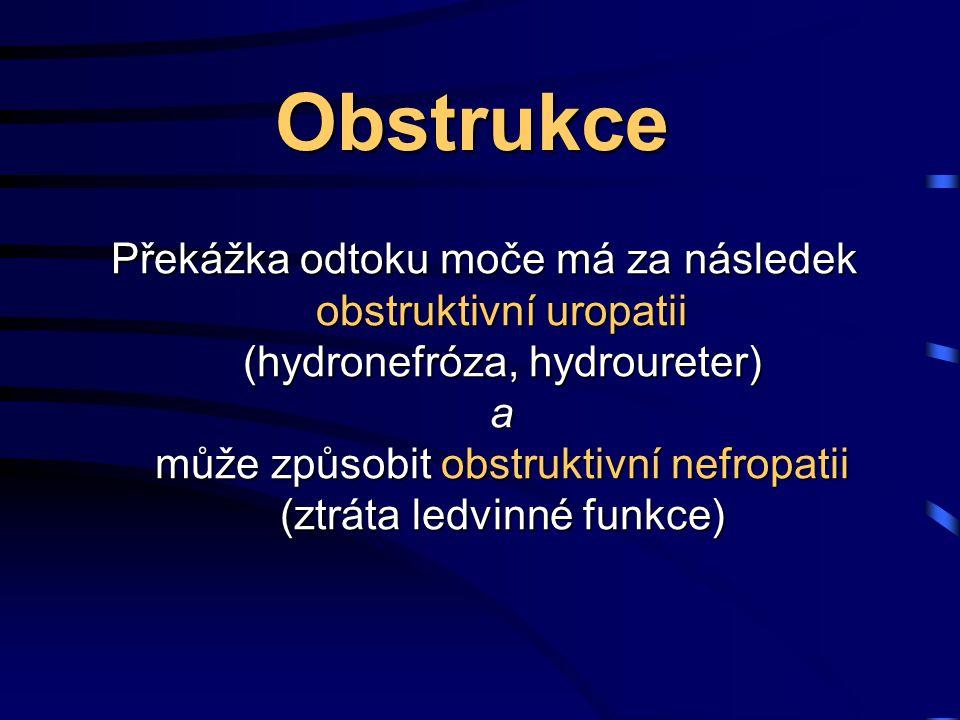 Obstrukce