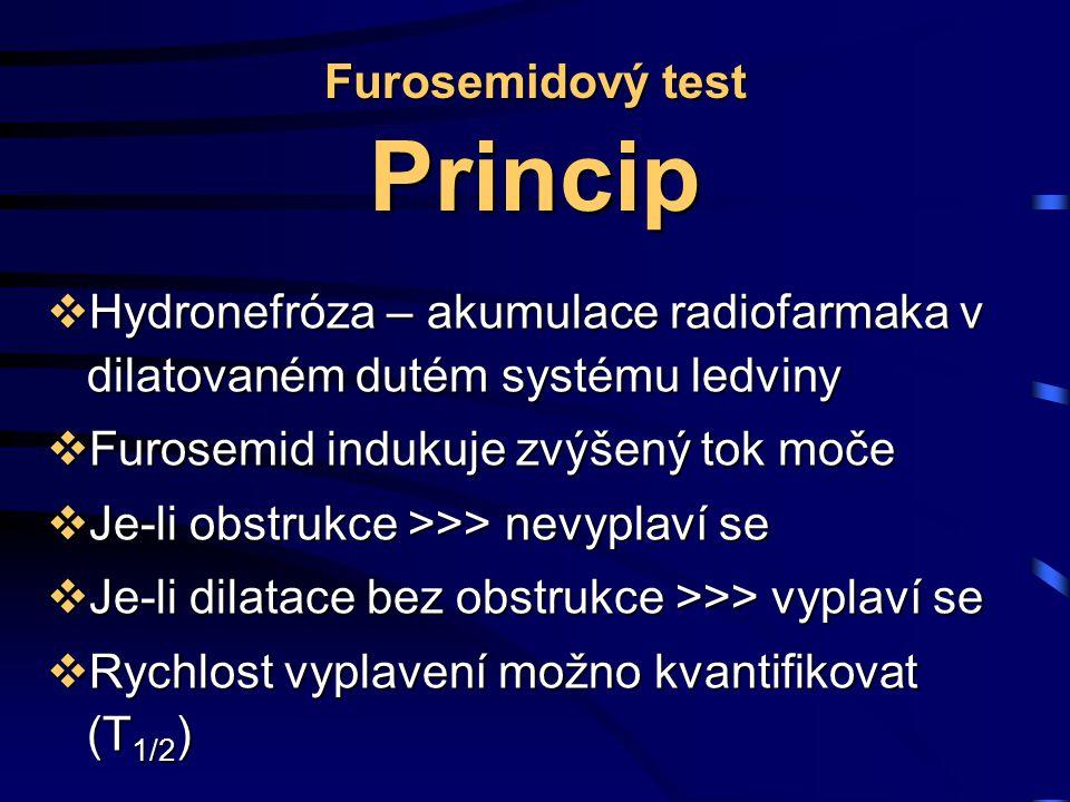 Furosemidový test Princip