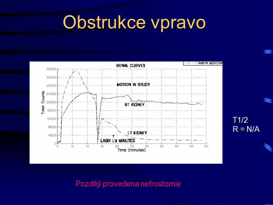 Obstrukce vpravo T1/2 R = N/A Později provedena nefrostomie