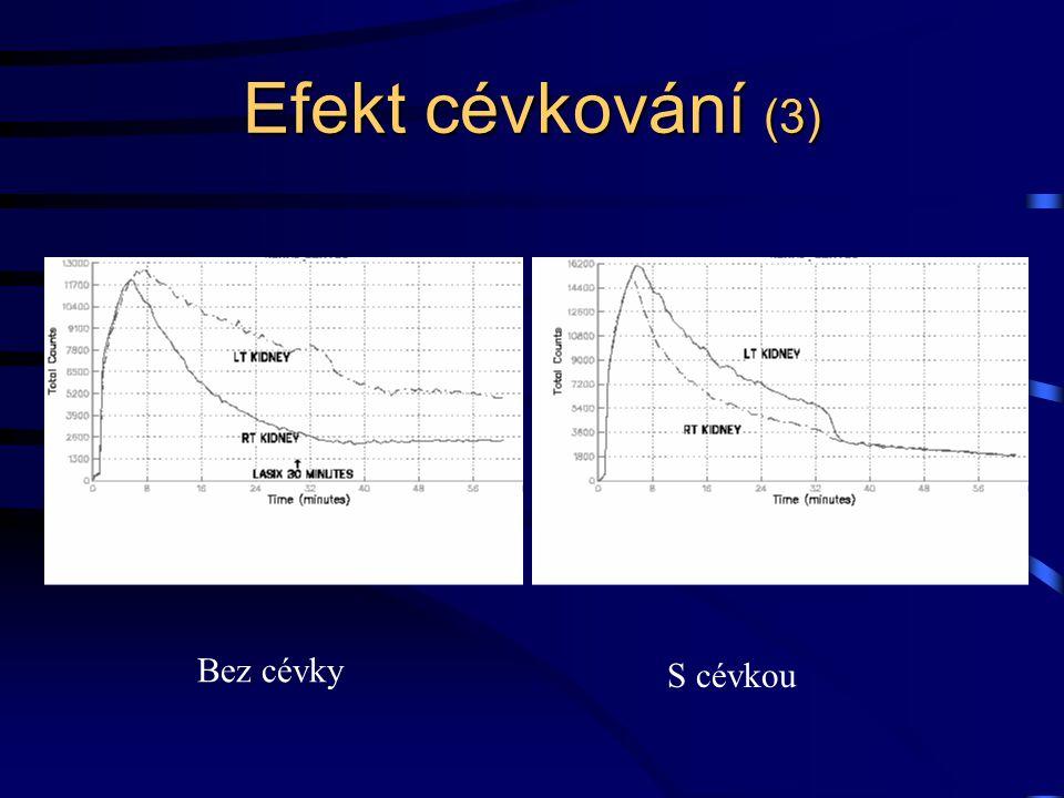 Efekt cévkování (3) Bez cévky S cévkou
