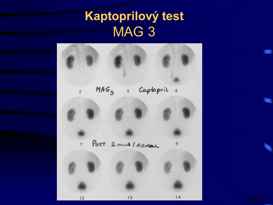 Kaptoprilový test MAG 3