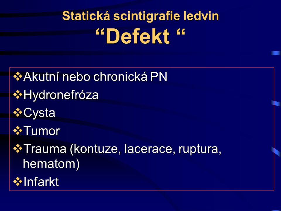 Statická scintigrafie ledvin Defekt