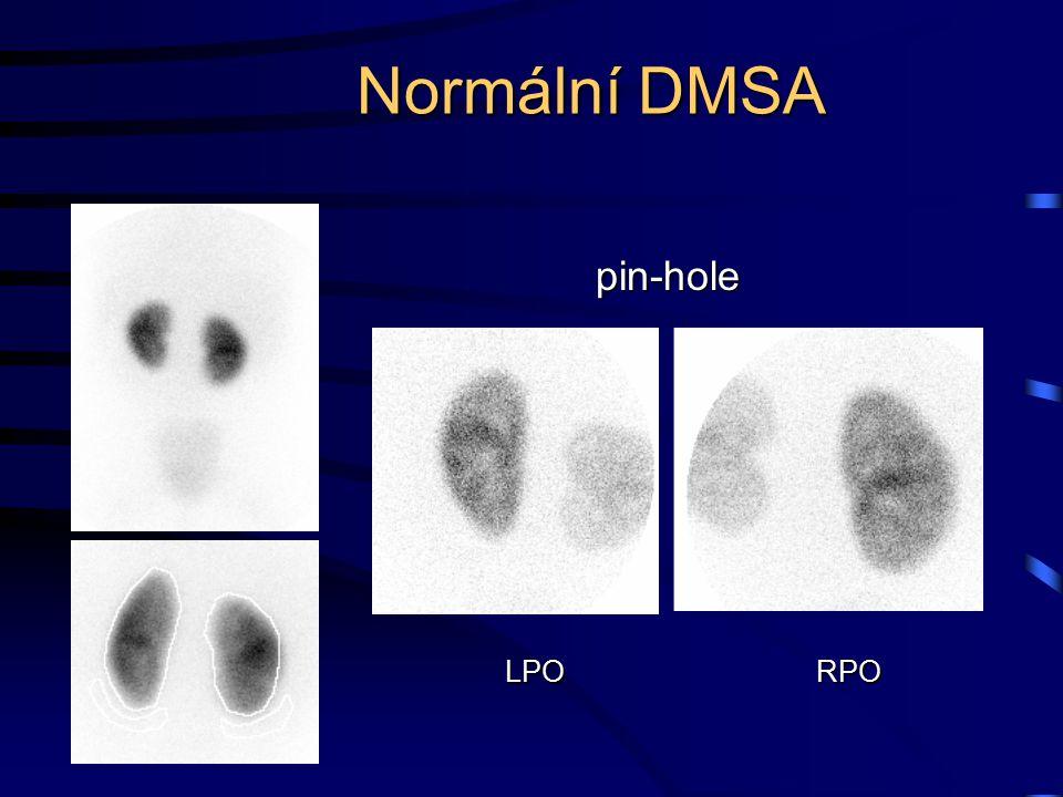 Normální DMSA pin-hole LPO RPO
