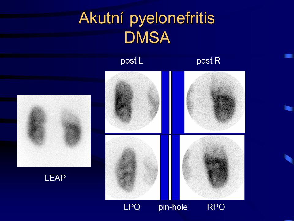 Akutní pyelonefritis DMSA