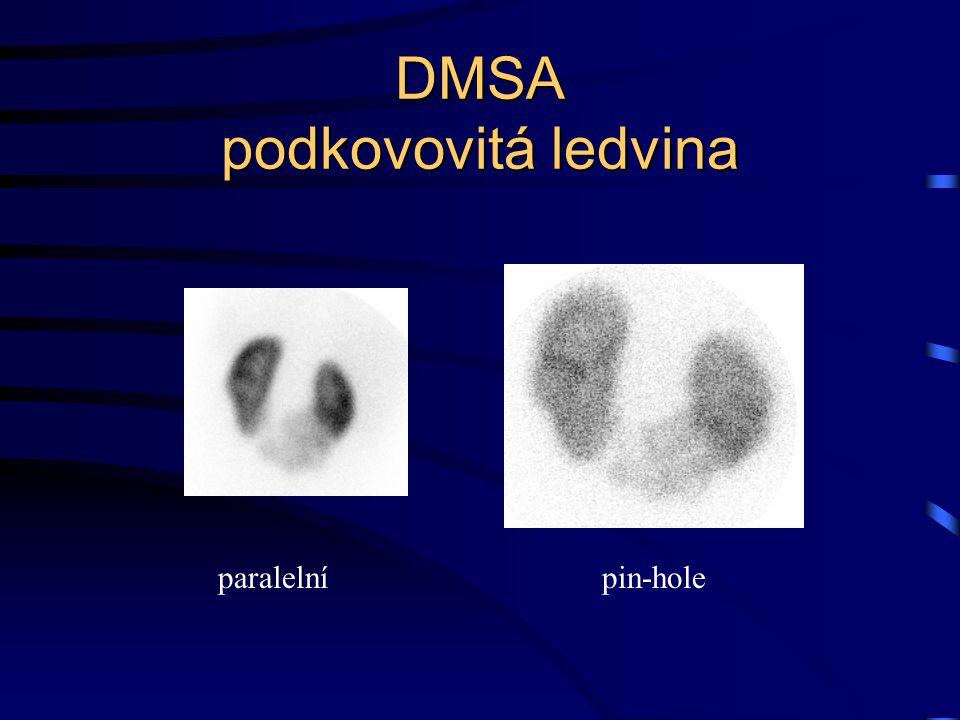 DMSA podkovovitá ledvina