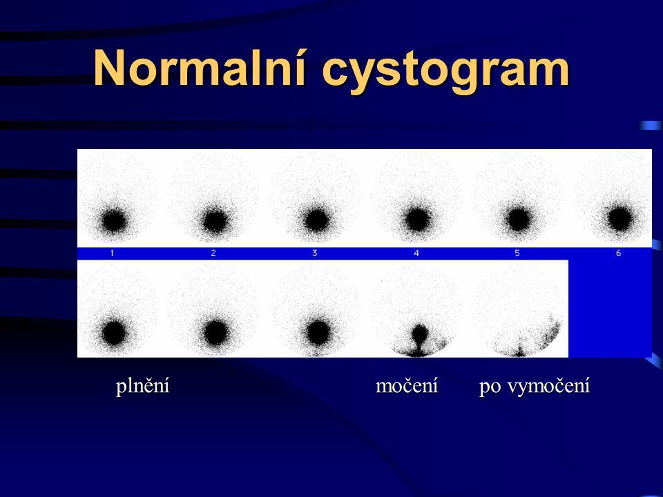 Normalní cystogram plnění močení po vymočení