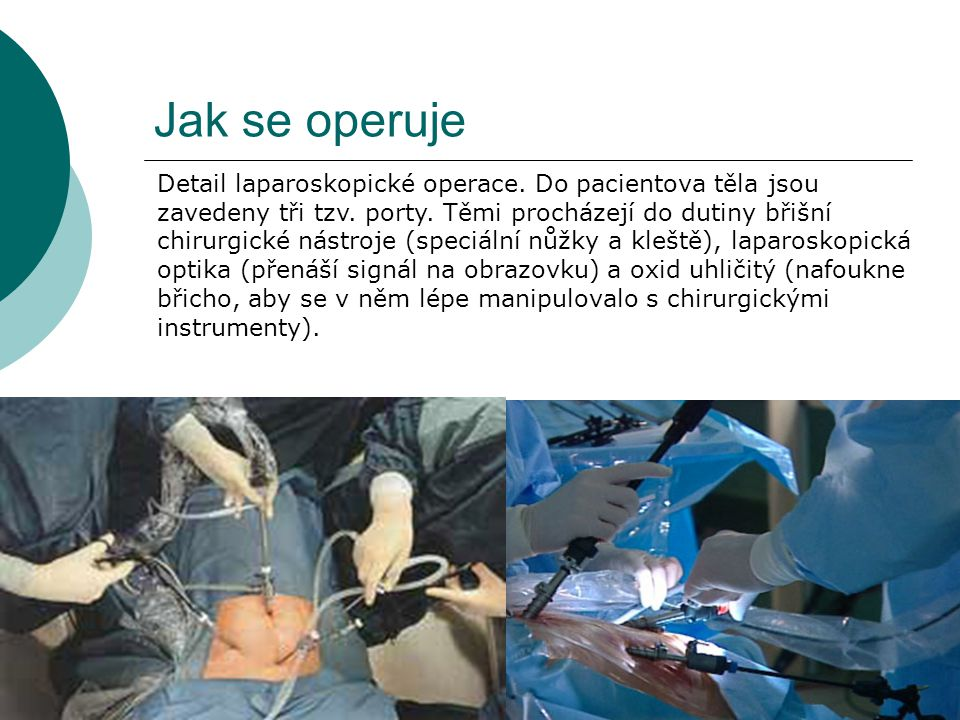 Jak se operuje