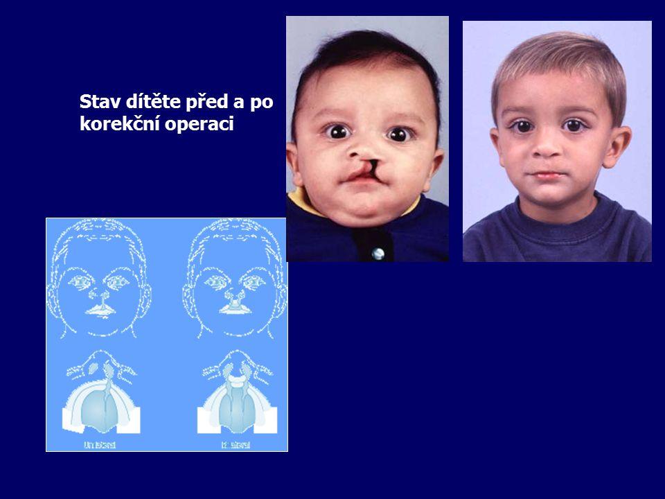 Stav dítěte před a po korekční operaci