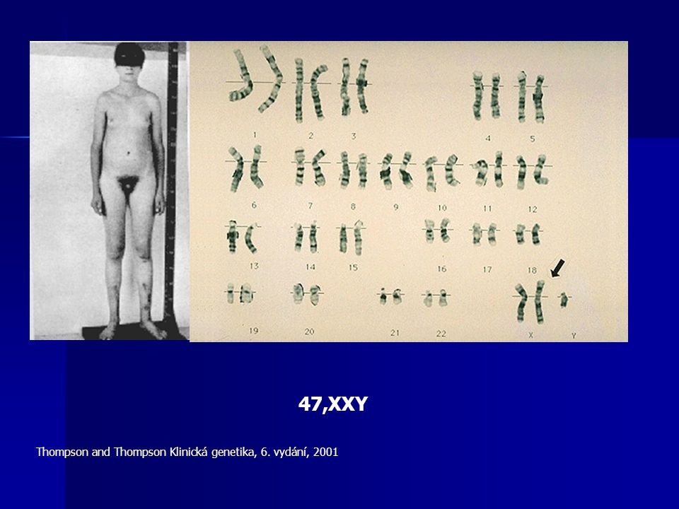 47,XXY Thompson and Thompson Klinická genetika, 6. vydání, 2001