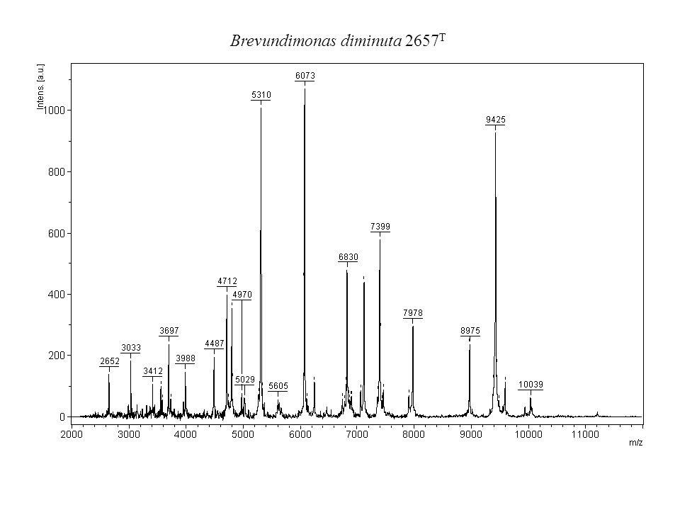 Brevundimonas diminuta 2657T