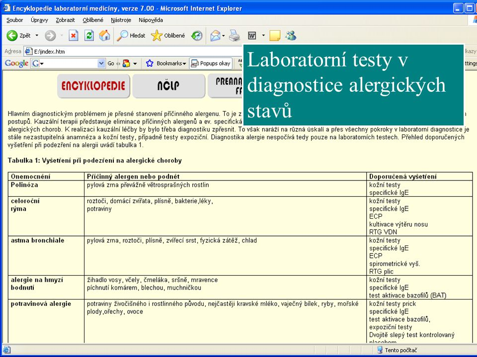 Laboratorní testy v diagnostice alergických stavů