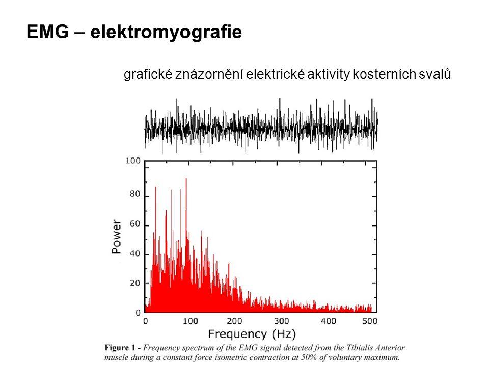 EMG – elektromyografie