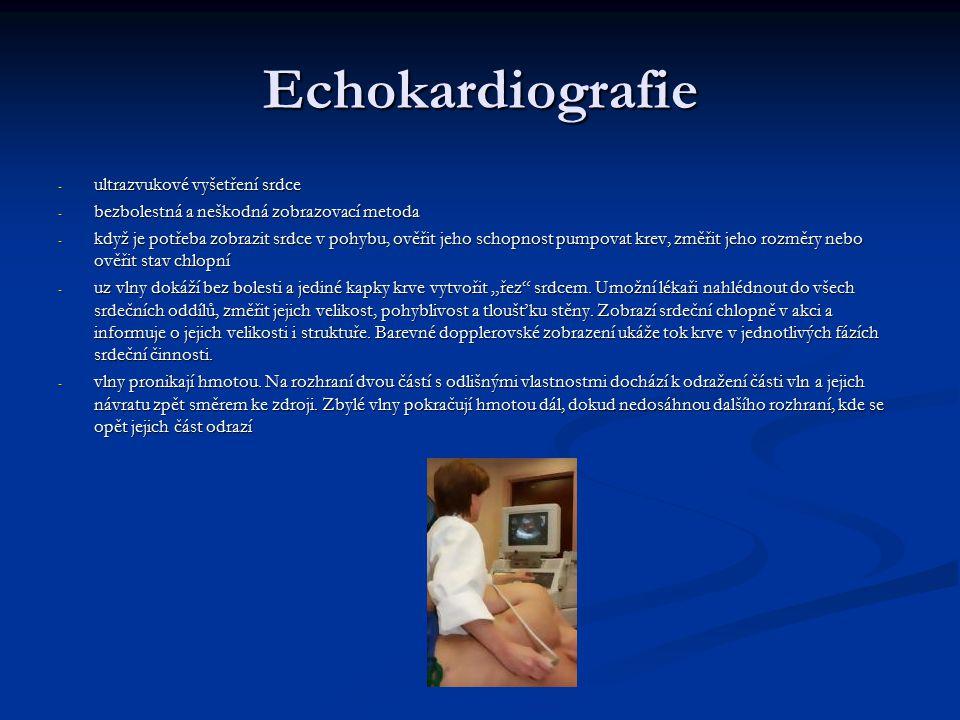 Echokardiografie ultrazvukové vyšetření srdce