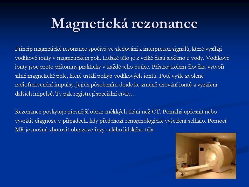 Magnetická rezonance Princip magnetické resonance spočívá ve sledování a interpretaci signálů, které vysílají.