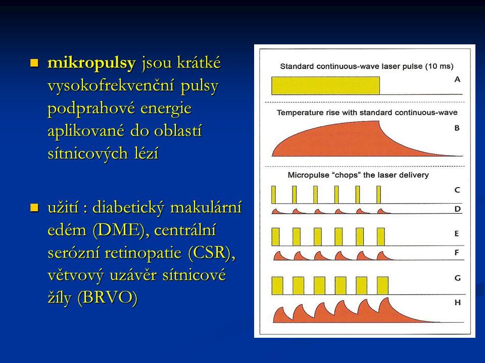 mikropulsy jsou krátké vysokofrekvenční pulsy podprahové energie aplikované do oblastí sítnicových lézí