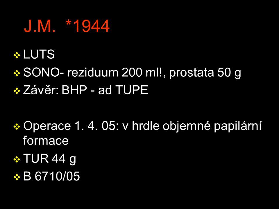 J.M. *1944 LUTS SONO- reziduum 200 ml!, prostata 50 g
