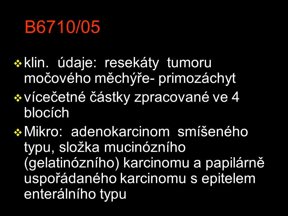 B6710/05 klin. údaje: resekáty tumoru močového měchýře- primozáchyt