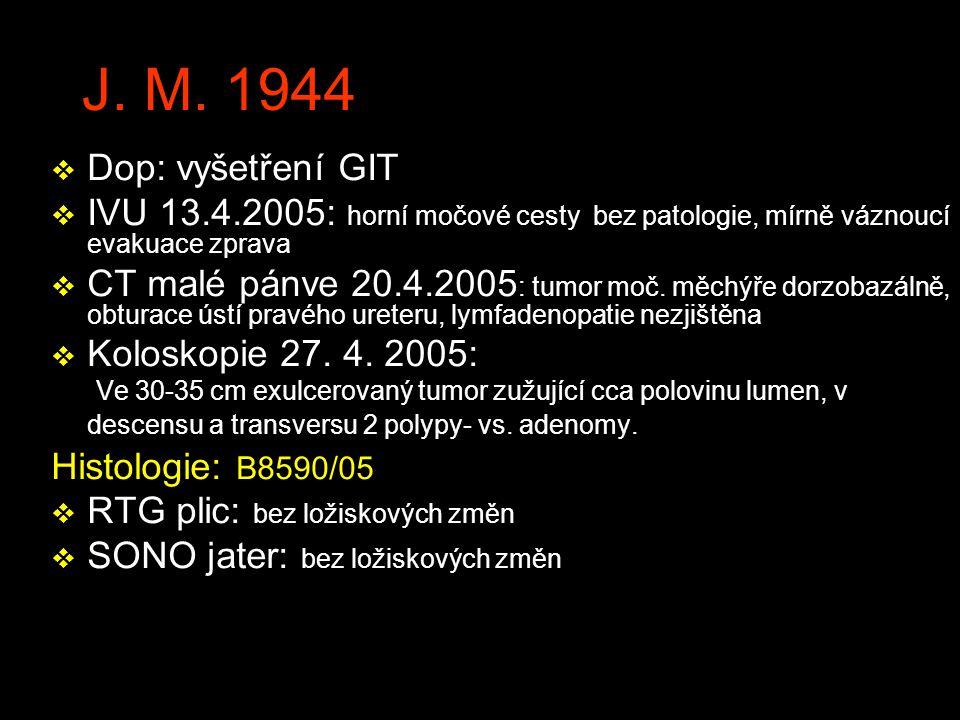 J. M. 1944 Dop: vyšetření GIT. IVU 13.4.2005: horní močové cesty bez patologie, mírně váznoucí evakuace zprava.
