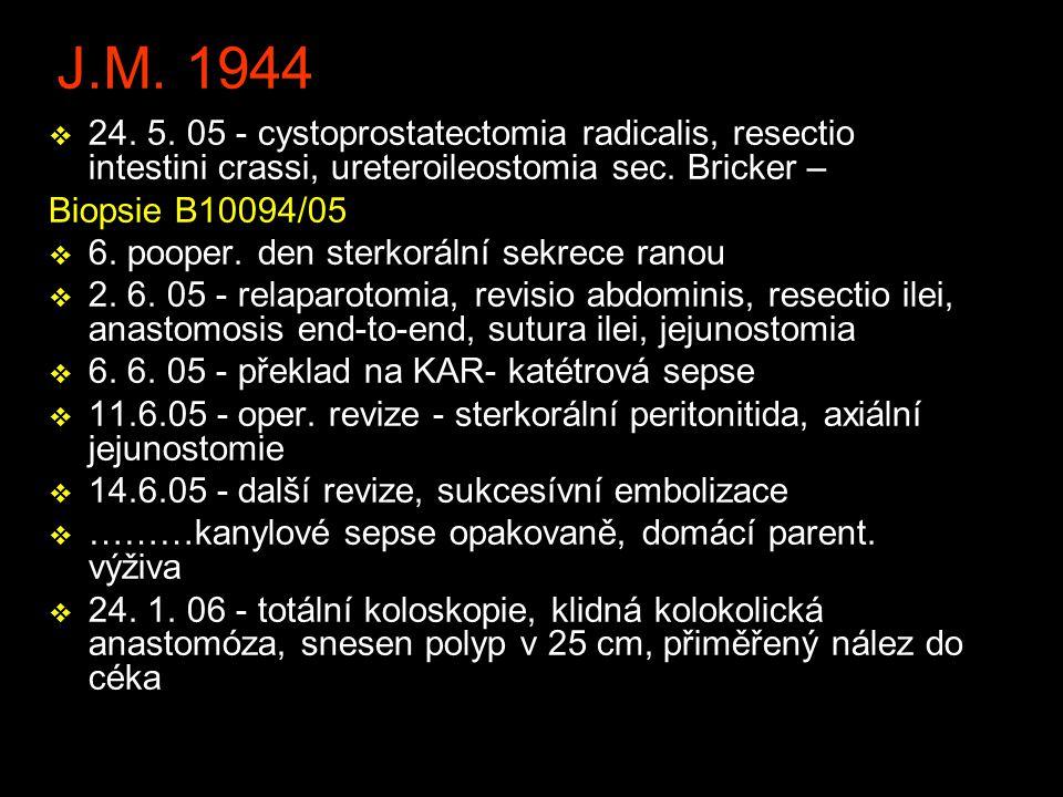 J.M. 1944 24. 5. 05 - cystoprostatectomia radicalis, resectio intestini crassi, ureteroileostomia sec. Bricker –