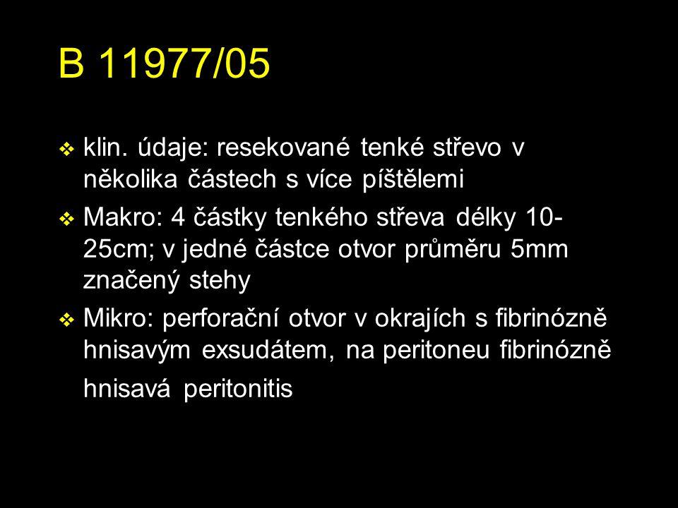 B 11977/05 klin. údaje: resekované tenké střevo v několika částech s více píštělemi.