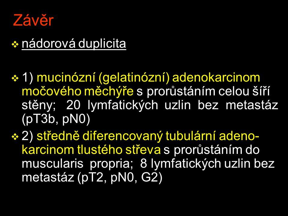 Závěr nádorová duplicita